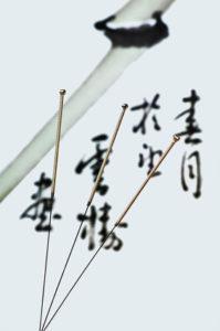 Akupunktur München