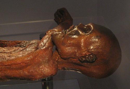 Der 5000 Jahre alte Ötzi mit Akupunkturmerkmalen