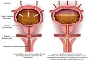 Osteopathie München: Chronische Harnblasenentzündung