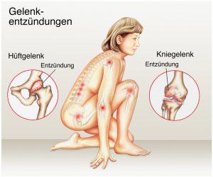 Gelenkentzündungen in Knie und Hüfte osteopathisch behandeln